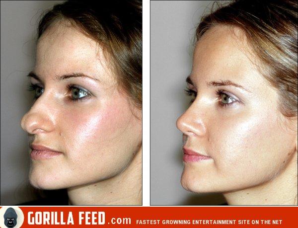 Как сделать красивый нос